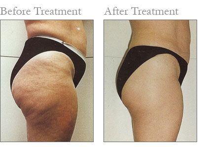 Smooth Cellulite