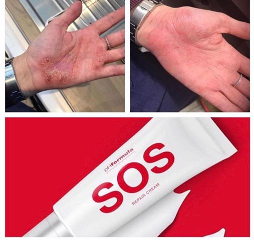 Do You Suffer From Dermatitis??