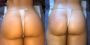 Brazilian Bum Lift